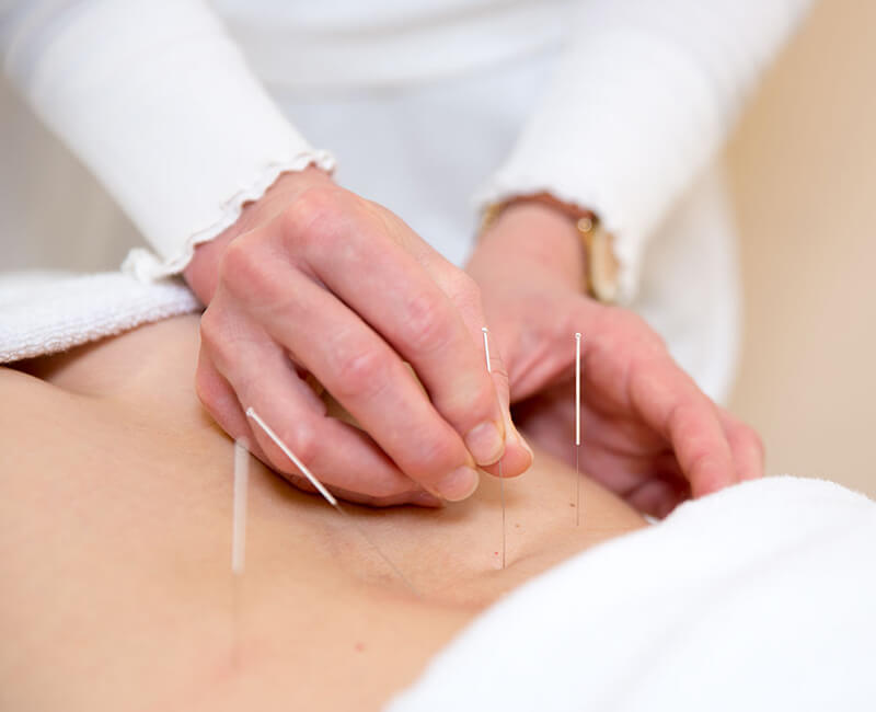 Akupunktur Bogenhausen